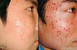 2 BEST PRODUCTS ACNE TREATMENT HYALURONIC ACID CREAM & MICRO