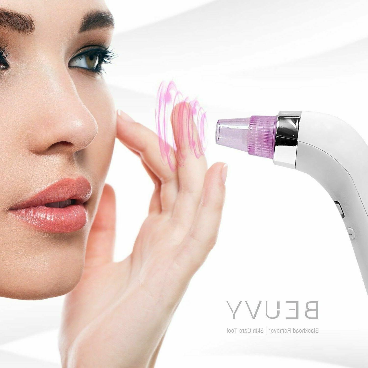 comedo suction microdermabrasion machine beauty device