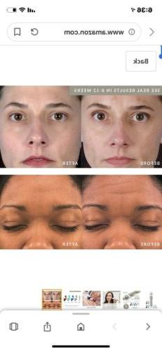 PMD Microderm Pro - At-Home with for